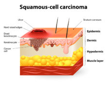Squamous Cell Carcinoma: Who's Susceptible and How It's Treated