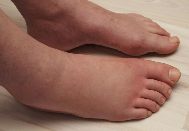 a0b64f004 Swollen Feet  The Condition Can Require Prompt Medical Attention ...