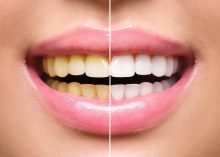7 Teeth Whitening Options: Which Ones Work Best?