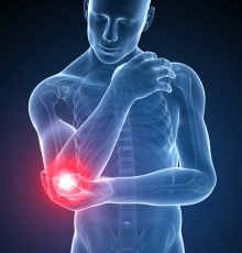 Tennis Elbow and Golfer's Elbow: They're Not Just for Tennis Players and Golfers