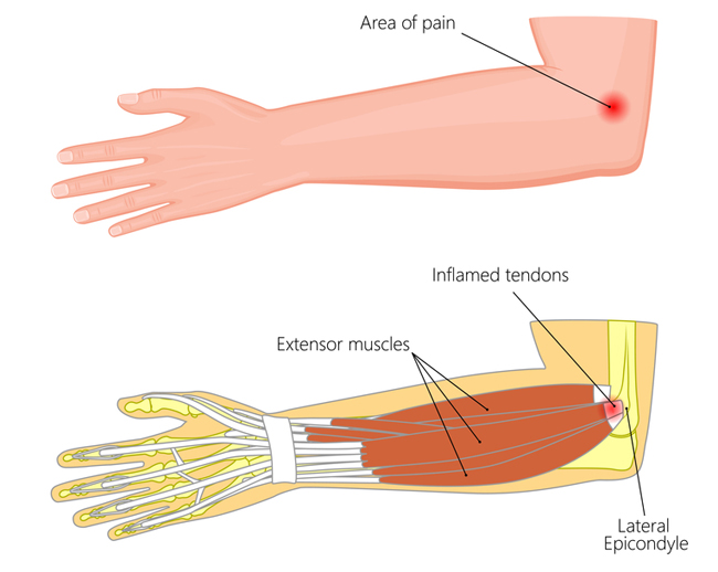 Tennis Elbow And Golfers Elbow Theyre Not Just For Tennis Players