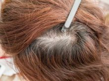 Thinning Hair Can Have Myriad Causes