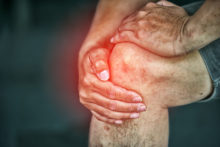What Is a Torn PCL?