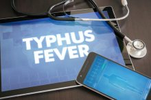 Typhus: What Is It, and Who's at Risk?