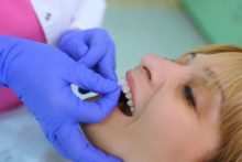 Dental Veneers Turn So-So Teeth Into Beauties
