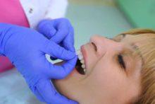 Dental Veneers Turn So-So Teeth Into Beauties