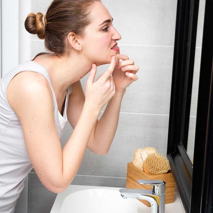vitamins that heal acne