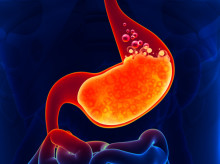 What Is GERD? Dealing with Gastroesophageal Reflux Disease