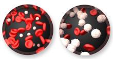 leukemia symptoms