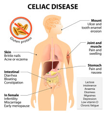 celiac disease symptoms list