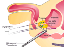 cryosurgery of the prostate gland