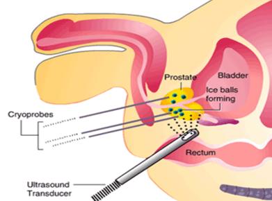 cryosurgery of the prostate gland