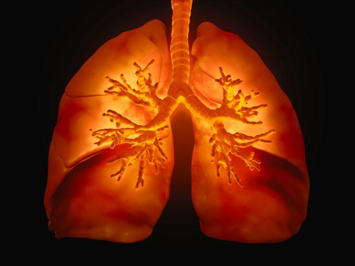 acute bronchitis