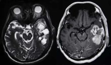 brain tumor causes