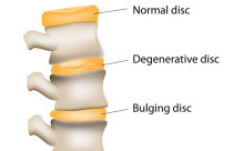 degenerative disc pain