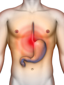gastrointestinal reflux disease symptoms