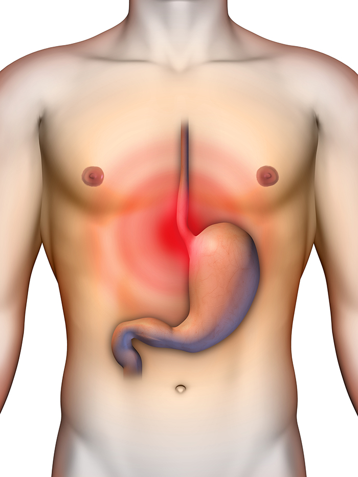 gastrointestinal reflux disease symptoms