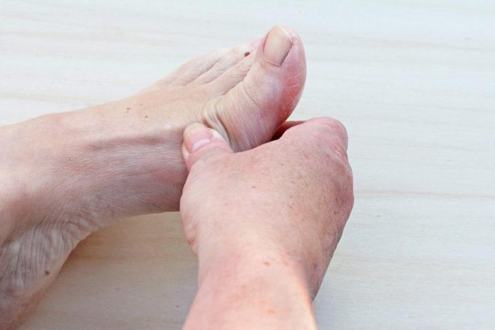 gout symptoms foot