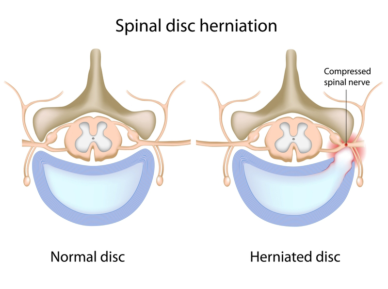 herniated disc
