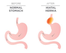 hiatal-hernia
