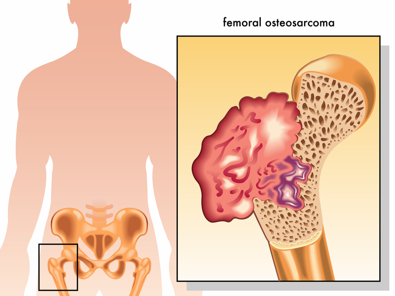 osteosarcoma symptoms