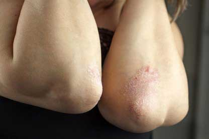 Psoriasis sufferer looking for home remedies