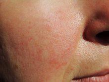 rosacea natural treatment