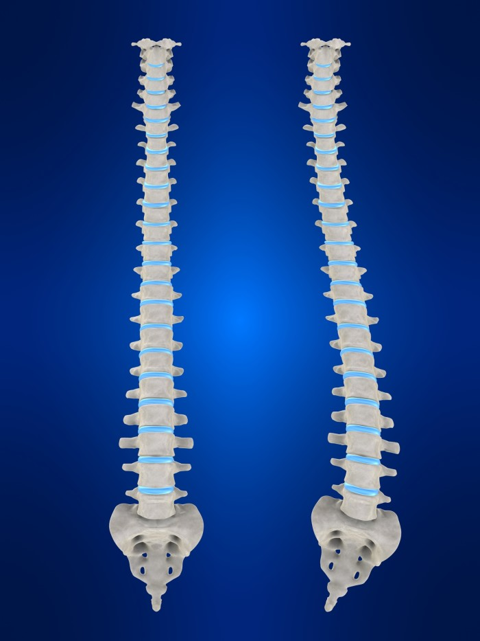 scoliosis pain