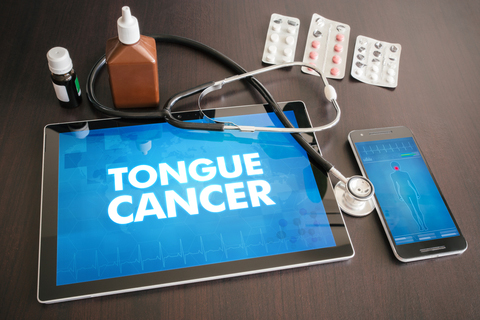 tongue cancer